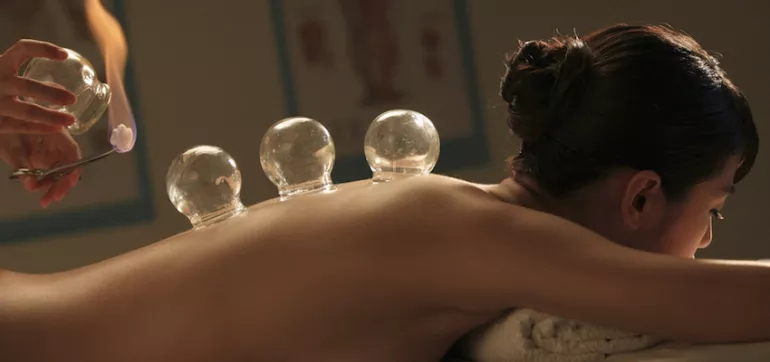 3-reasons-to-try-cupping